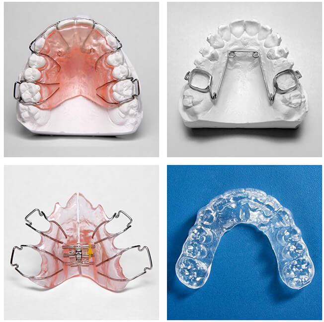 Orthodontie Enfant Saint-Germain-en-Laye